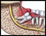 Diş etinde enfeksiyon