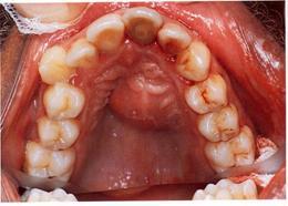 Tedavi edilmeden bırakılan bir dişin sebep olduğu damak apsesi
