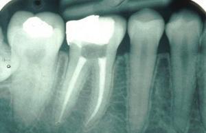 Kanal tedavisi tamamlanan bir dişin röntgendeki görünümü