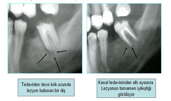 Lezyonlu dişler kanal tedavisi ile iyileşebilir mi?