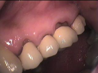 Kötü yapılmış  diş tedavileri ( Dolgu ve kaplamalar)
