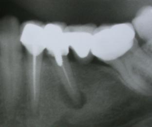 Diş Kökünde Kronik İltihap'ın(Apikal Lezyon ) röntgendeki görünümü