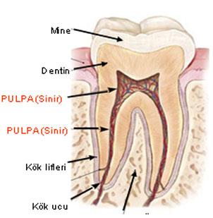 Diş Pulpası (Siniri)